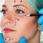 Cosmetische chirurgie kan de kwaliteit van je leven verbeteren